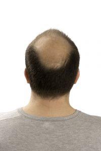 השיער מאחור ממשיך לצמוח כרגיל