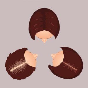 תהליך הדלדלות השיער