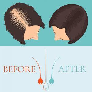 הרבה טיפולים בשיער דליל מובטחים ברשת