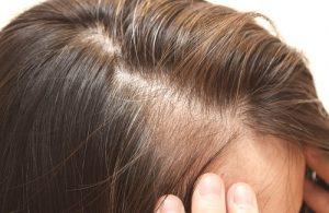 השיער הדליל יכול להופיע גם בגיל צעיר