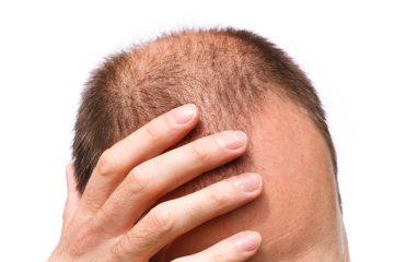 סיבות להתקרחות גברית ונשירת שיער