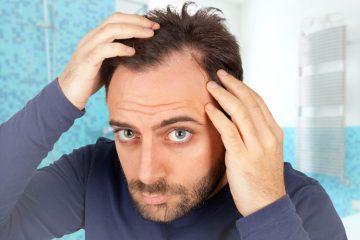 טיפולים בהתקרחות גברית ונשירת שיער